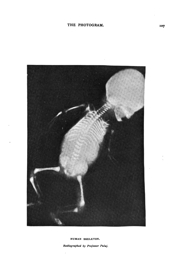[Fig. 11]